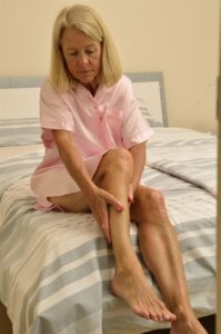 Helen-With-Peripheral-Artery-Disease