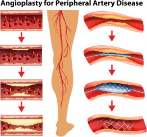 angioplasty-for-peripheral-artery-disease