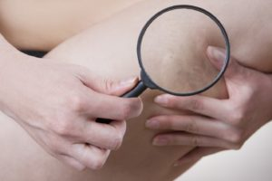 diagnosing-varicose-veins